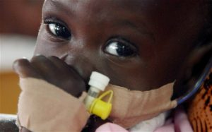 A child suffering from HIV. Photo:Telegraph.co.uk